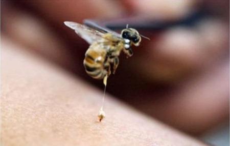 Лечение суставов пчелами при ортрите пузырьки газа в суставах